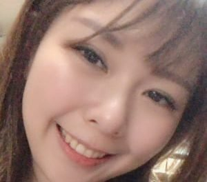 齒顎矯正成功案例 | 魅力笑容重現!